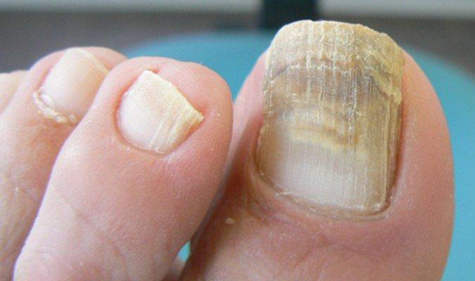 Como quitar los hongos en el dedo gordo del pie