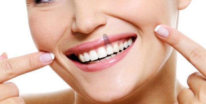 Implantes dentales: precauciones y consejos para que no fracasen
