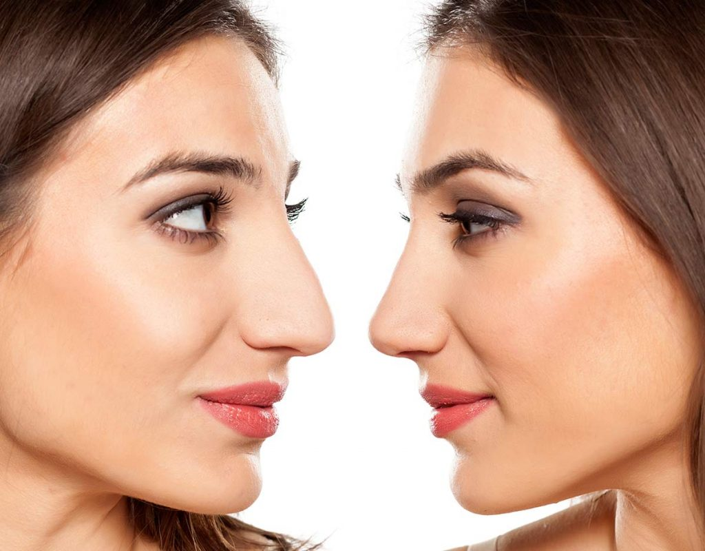 Los tratamientos de cirugía estética mas comunes