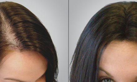 ¿Cuál es la mejor manera de recuperar el cabello perdido?