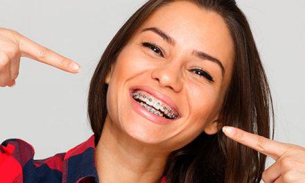 ¿Cuándo es aconsejable una ortodoncia? Luce una sonrisa perfecta