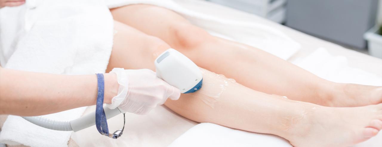 ¿Interesada en depilación láser? Elige la mejor opción