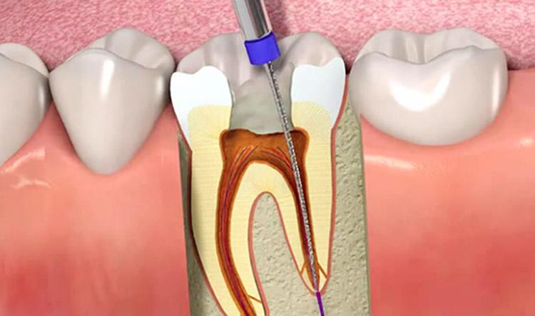 ¿Qué es una endodoncia? Síntomas y tratamiento