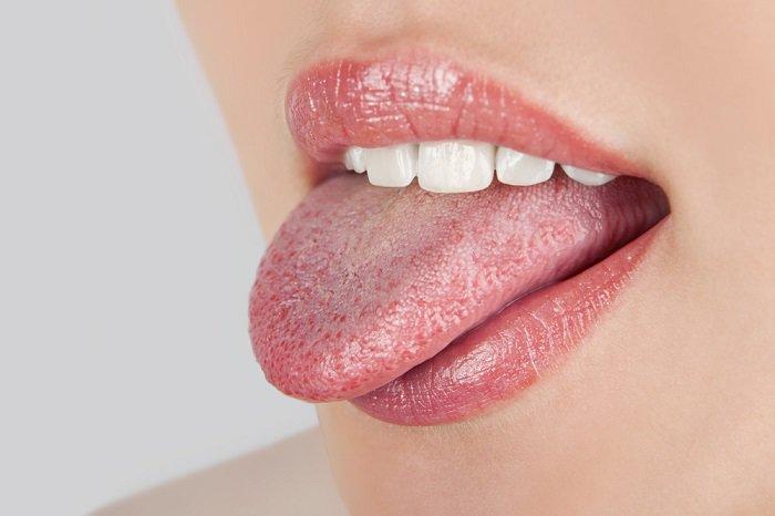 Tratamiento para tratar los hongos en la boca