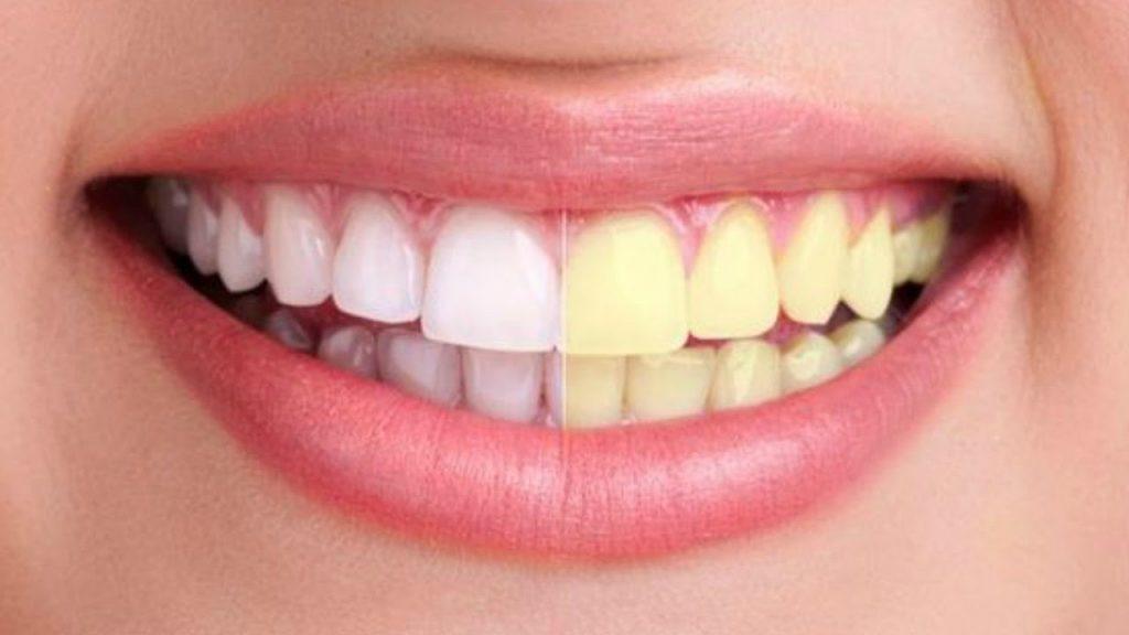 Trucos y consejos para una mejor sonrisa