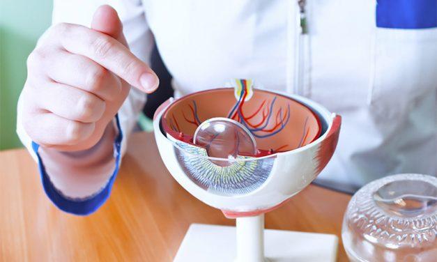 Como cuidar tus ojos después de una operación de cataratas