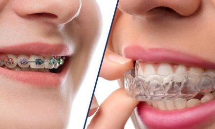Conoce la nueva ortodoncia invisible