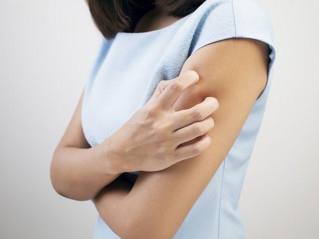 Consejos para combatir las alergias de la piel