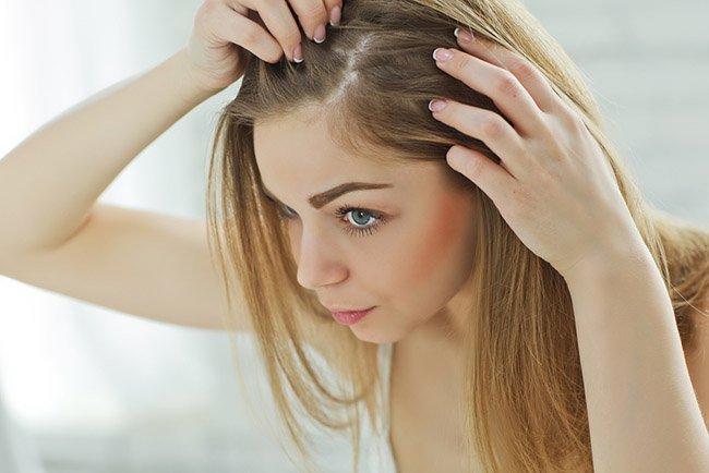 Consejos para evitar la perdida de cabello femenina