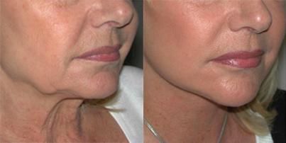 Descubre los hilos tensores, la mejor alternativa al lifting facial