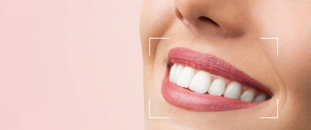 Diseño de sonrisas, la técnica integral de estética dental
