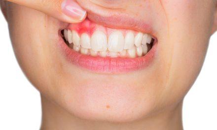 Sangrado de encías: El termómetro de la salud de tu boca