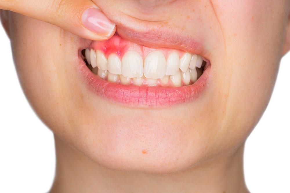 El sangrado de encías: El termómetro de la salud de tu boca