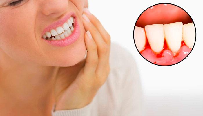 Encias sangrantes, cuidados en casa y visitas al dentista