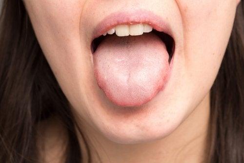 Hongos en la boca: Todo lo que necesitas saber