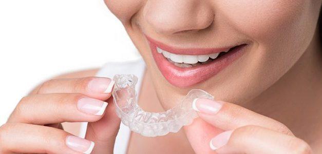La mejor opción para tu ortodoncia
