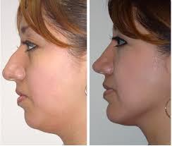 Los beneficios de una mentoplastia sin cirugía