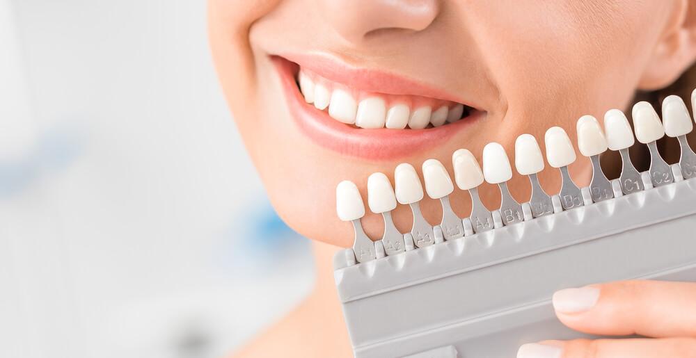 Los implantes dentales ganan cada día más adeptos, descubre porqué