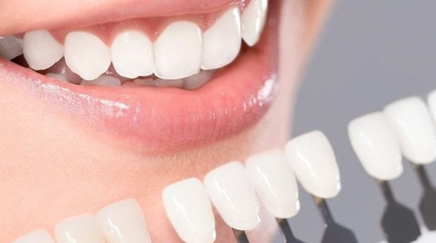 Los mejores blanqueamientos dentales