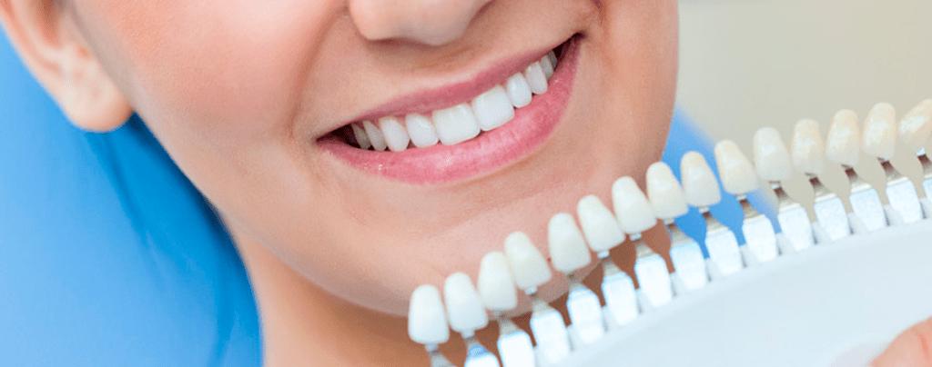 Mejora la higiene bucal con un blanqueamiento dental