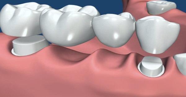 Repara tu sonrisa de forma económica con puentes dentales
