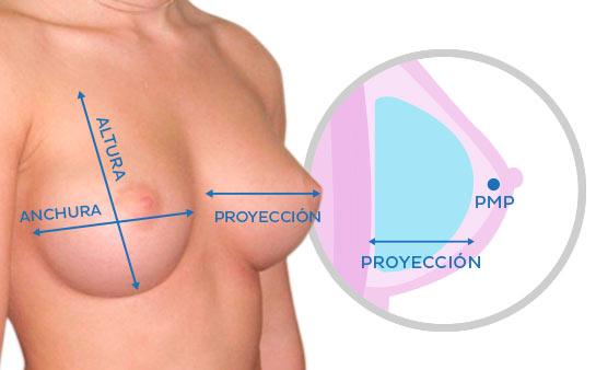 Tipos de prótesis para aumento de pecho