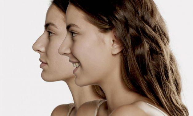 Cambia tu nariz sin pasar por el quirófano con rinomodelación