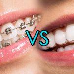 Beneficios de la ortodoncia invisible (Invisalign)
