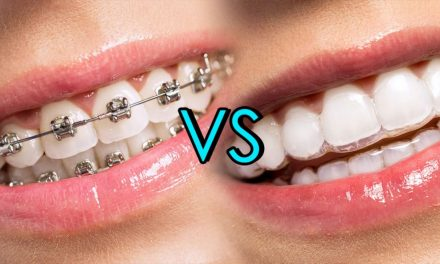 Beneficios de la ortodoncia invisible (Invisalign)