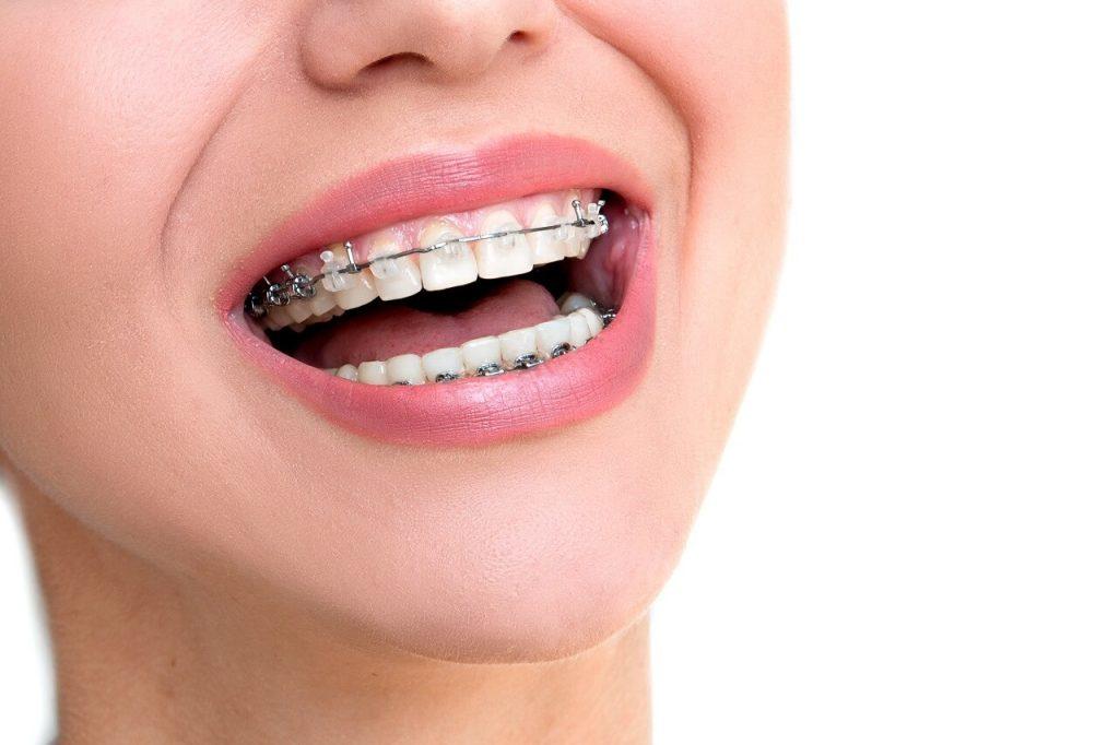 Ventajas de usar el sistema Damon para ortodoncias